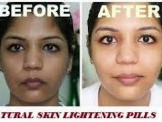 Zawe Beauty Clinic Skin Lightening Whitening Bleaching Pills and Creams Call on +27(63)0716312